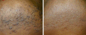 ontharing donkere huid vergoed